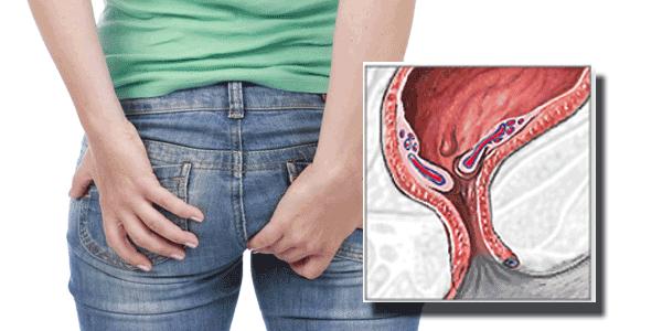 Kako skrbimo za zdravo prebavo in preprečimo nastanek hemoroidov?